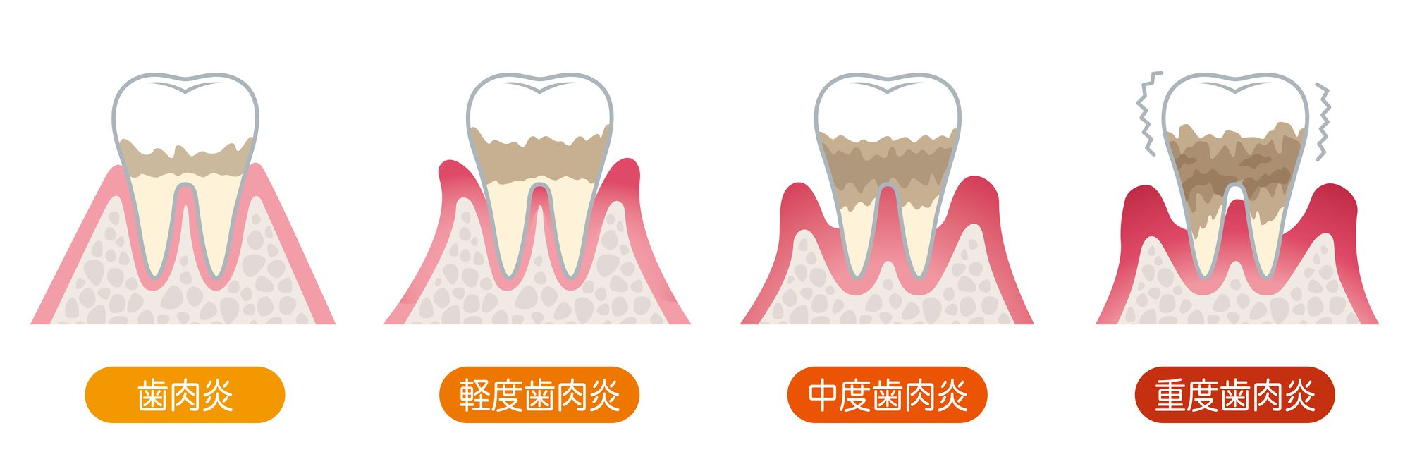 ステージ別歯周病